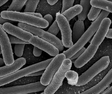Escherichia coli, Slow Food: